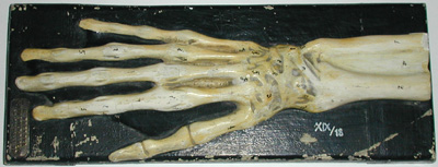 Medical Model, Skeleton Hand